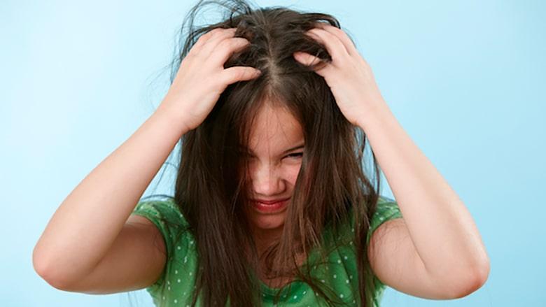 remedios caseros para eliminar piojos en niños