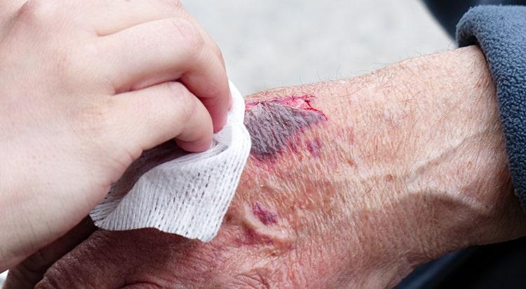 cicatrizar heridas