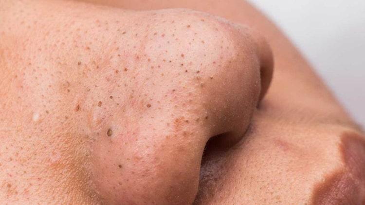 Puntos negros en la piel