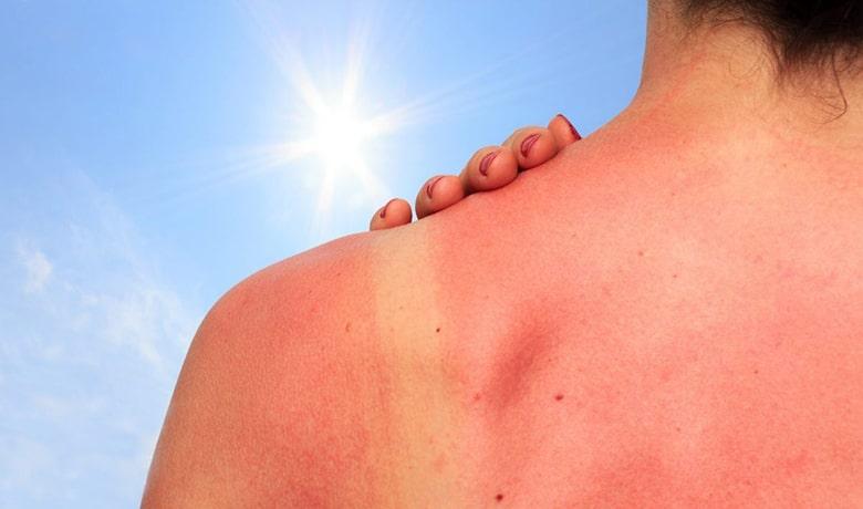 trucos para aliviar quemaduras del sol